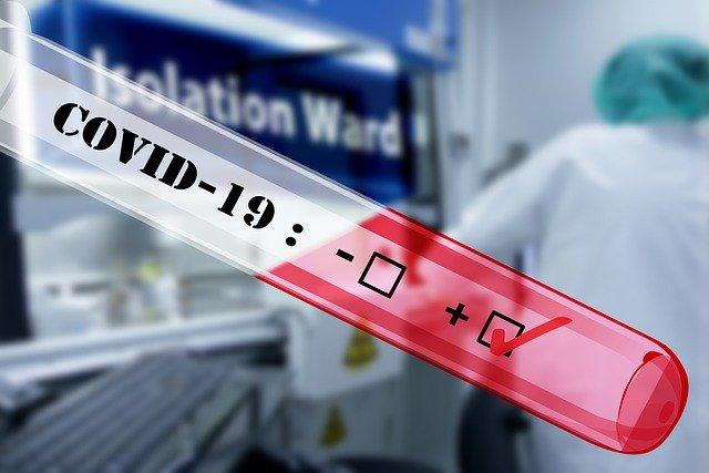 Ilustracija, virus korona, foto: Pixabay.com
